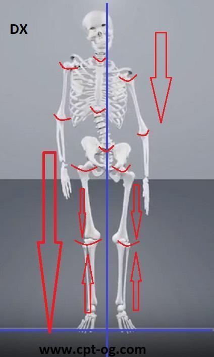 Un'articolazione consumata/rovinata (anche da traumi) guarisce anatomicamente e completamente solo se si è in equilibrio meccanico abituale del corpo