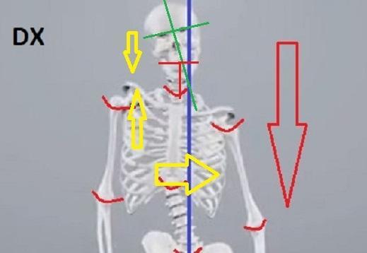 Atleti, sportivi, professionisti, avete una spalla più alta o il bacino ruotato a causa del Disequilibrio Meccanico Abituale del corpo