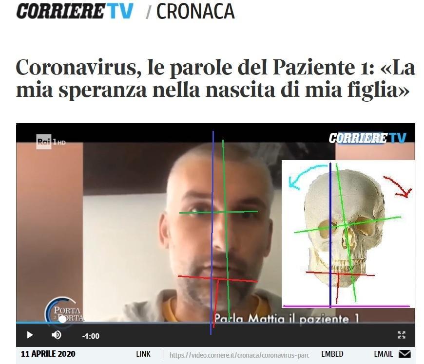 Il Paziente 1: un DMA in Fase 4 mai identificato da nessuno.
