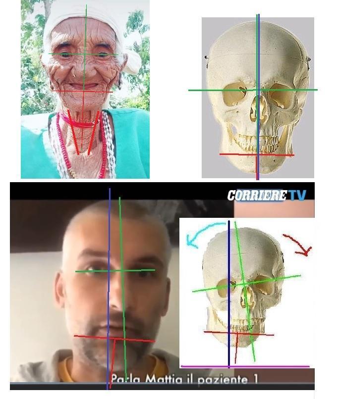 Il Recupero dell'Equilibrio Anatomico Abituale – CPT-OG