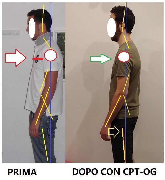 Forza di gravità e posizione meccanica ABITUALE del corpo. Attenti agli incompetenti.