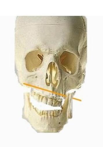 Denti dritti o ossa storte o entrambe le cose? Ortodonzia: quando è pericolosa per l'Equilibrio Meccanico Abituale del corpo umano?