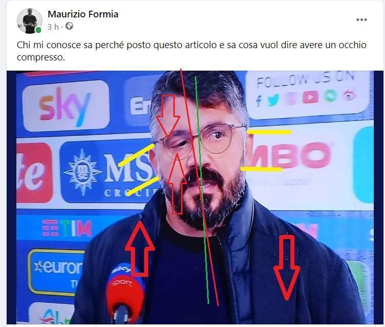 Il calciatore Gattuso e l'occhio destro compresso meccanicamente