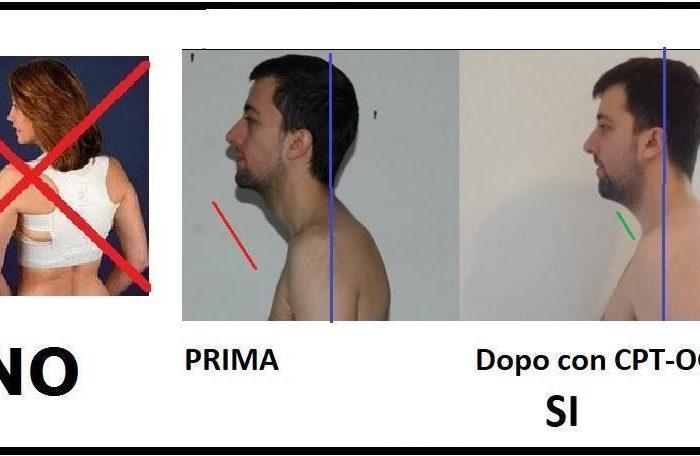 Parlare di Bite e di Postura è fuorviante: il CPT-OG corregge la meccanica abituale del corpo umano…..definitivamente!