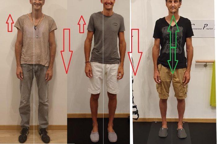 Perchè tutte le valutazioni posturali non sono scientifiche e non sono affidabili?