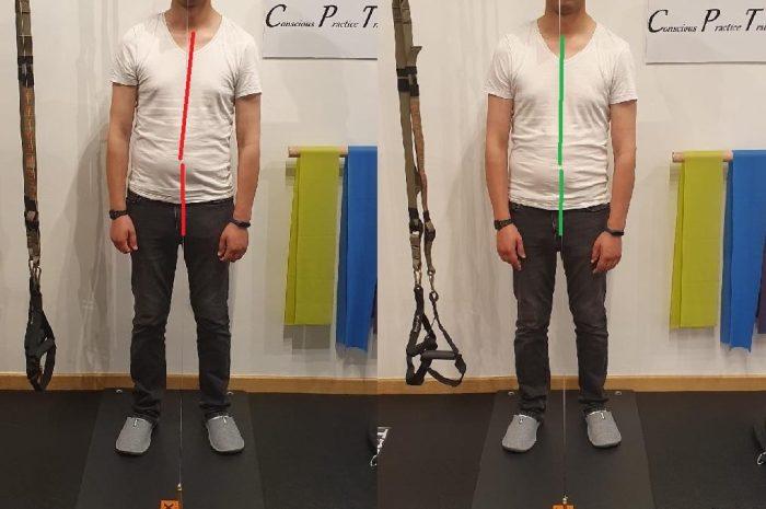 Le correzioni (upgrade) durante il Riequilibrio Meccanico Abituale del corpo: un esempio di scoliosi…