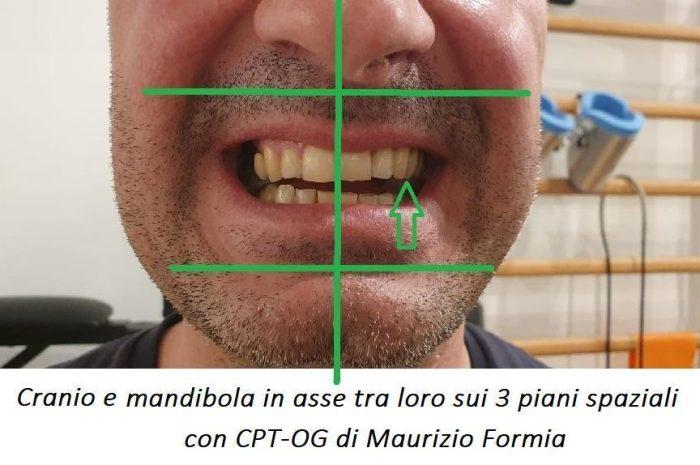 La mandibola come SOSTEGNO del cranio: il cambiamento di paradigma è ovvio